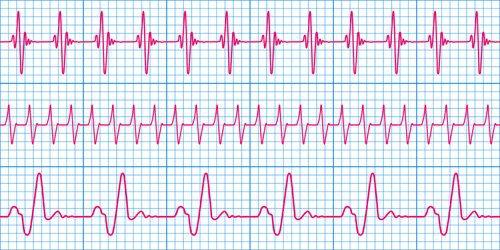 IEC 60601-2-25 ED 2 Electrocardiogram