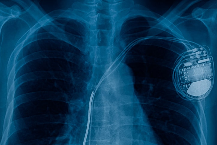ISO 14117:2019 electromagnetic compatibility (EMC) test protocols active implantable medical devices Pacemaker