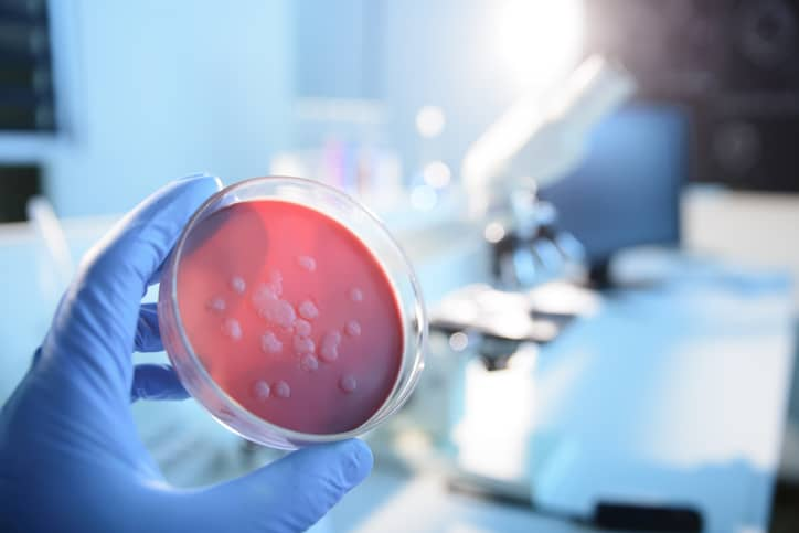 Microbiological culture in biosafety level 3 lab, BSL-3, designed with ANSI/ASSP Z9.14-2020